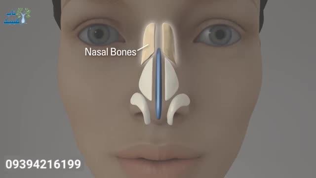 فیلم جراحی عمل بینی نوک گرد