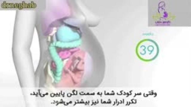 آیا حالت تهوع در هفته اول بارداری طبیعی است ؟؟؟