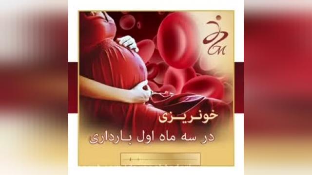 آیا خونریزی مانند قاعدگی در هفته های اول بارداری خطر ناک است ؟